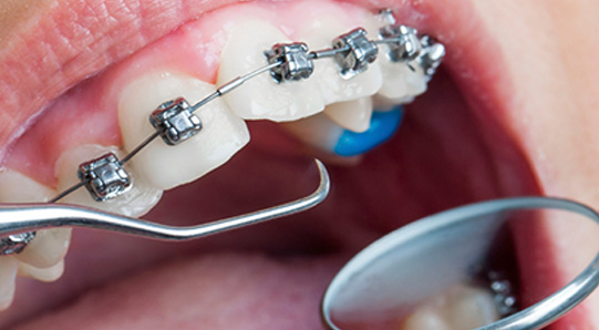 best braces in uae dubai