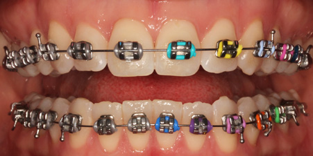 colored braces in Dubai