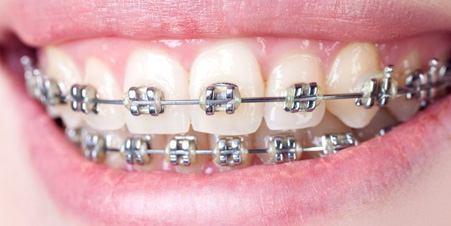 best braces in Dubai